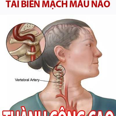 Cấp cứu chữa tai biến mạch máu não